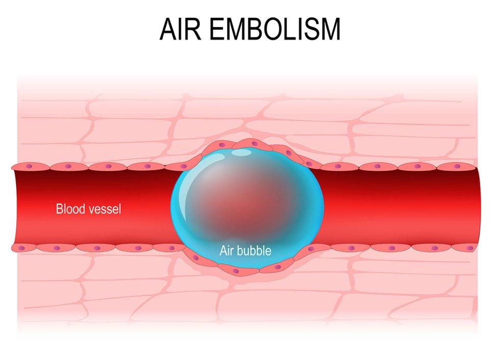 preventing air embolisms