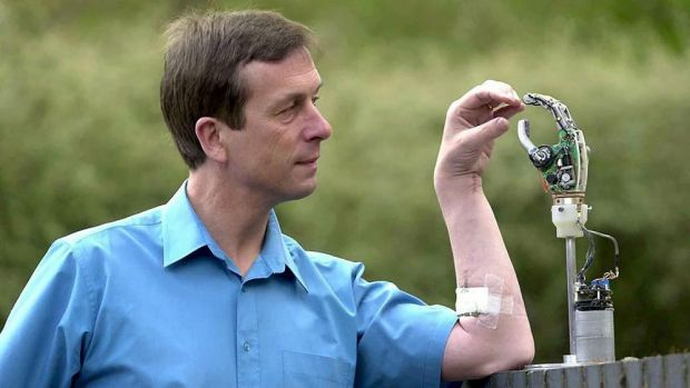 Professor Kevin Warwick and his Cybernetic Arm. Photo: REX