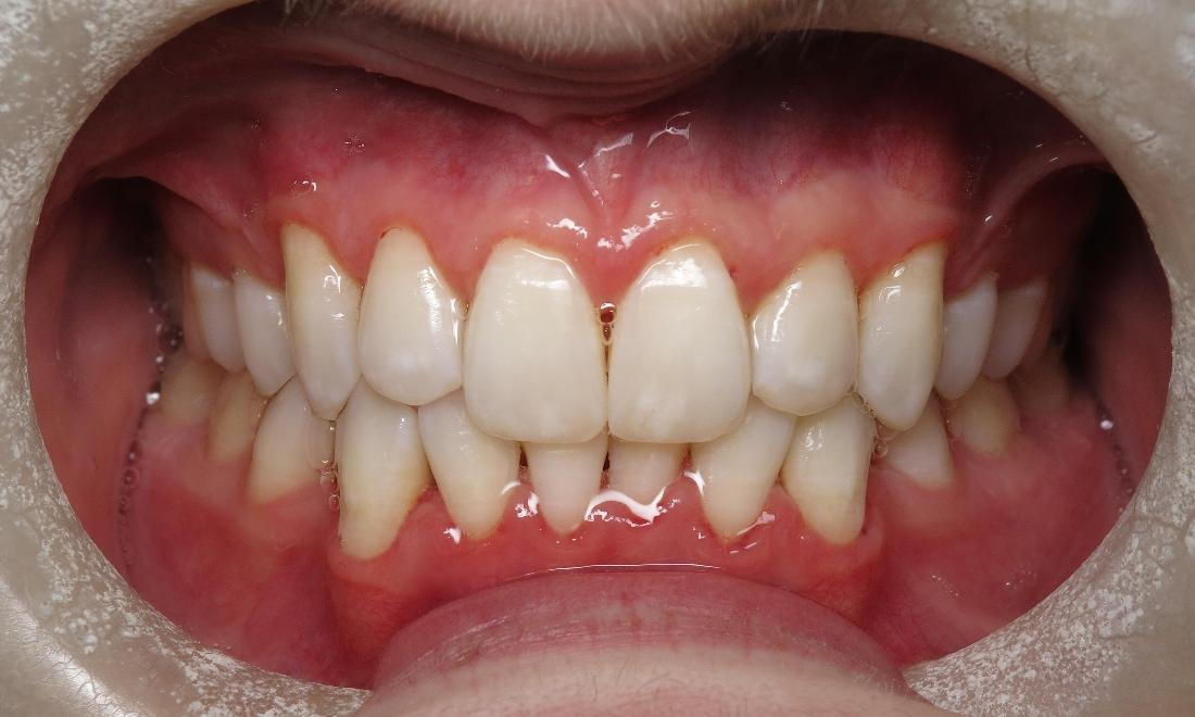 Gum Infections Dentist Lake Charles La Images Of