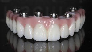 SmileCare Plymouth Dental and Dentures