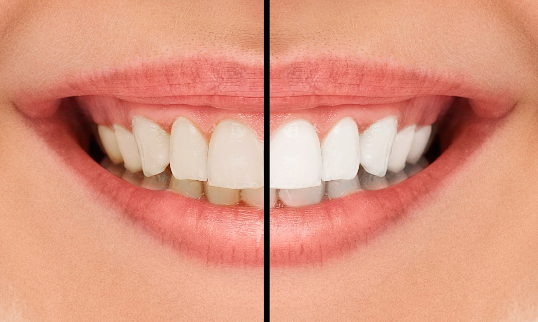 Teeth Whitening SmileCare Plymouth
