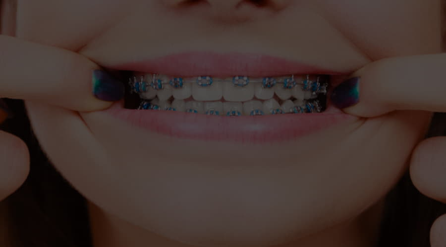 What types of orthodontics are there?