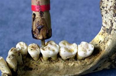 Dentist's Drill