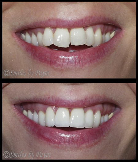 """Instant Braces"" - Crowded teeth made straight in only 3 weeks with 20 Porcelain Veneers by Charlotte cosmetic dentist Dr. Charles Payet"
