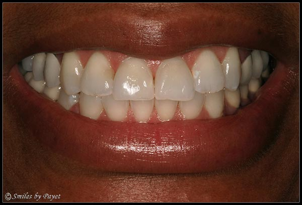 Fixing a Gummy Smile with a Gum Lift, or periodontal plastic surgery - AFTER