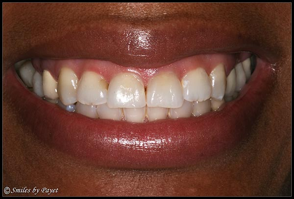 Fixing a Gummy Smile with a Gum Lift, or periodontal plastic surgery - Before