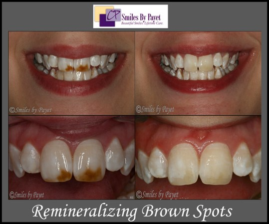 Brown spots on teeth can be whitened by remineralizing the teeth.
