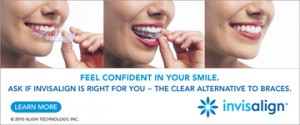 Charlotte NC Invisalign dentist offers Express 5 clear aligners to move teeth fast