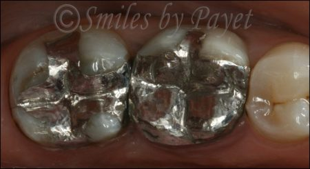 Dr. Payet talks about the safety of mercury silver fillings.