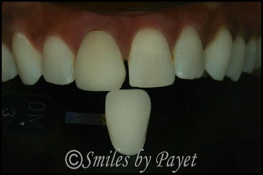 Charlotte cosmetic dentist Dr. Payet matches teeth and crowns
