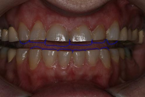 The blue lines show long those these teeth SHOULD be.