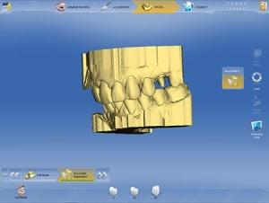 cerec-connect-digital-dentistry-charlotte