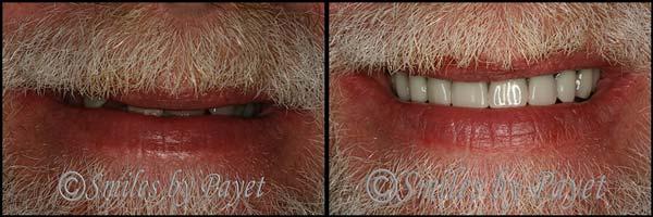 Charlotte Matthews Pineville dentures