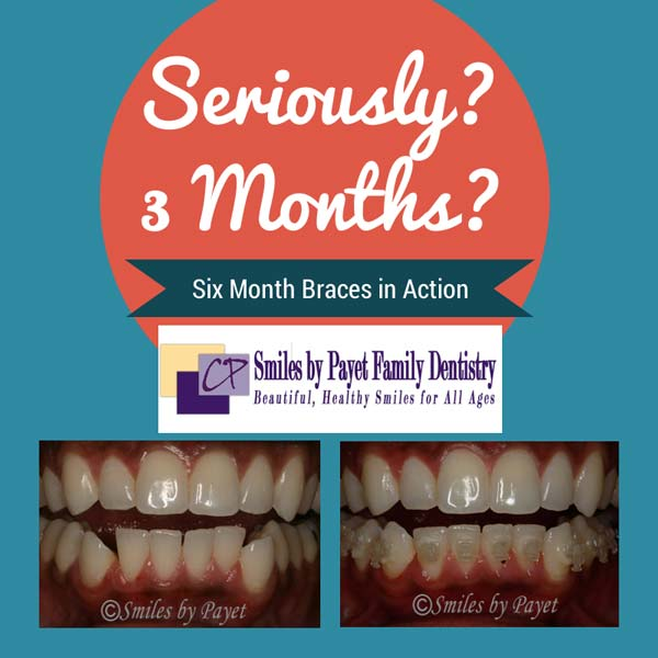 Charlotte dentist shows how fast Six Month Braces work
