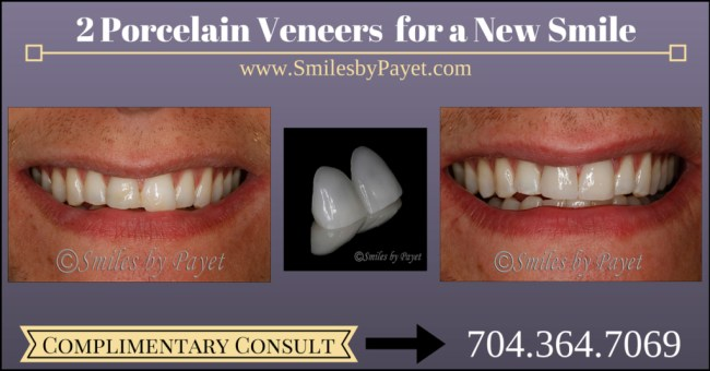 2 Porcelain Veneers by cosmetic dentist of Charlotte Dr. Payet
