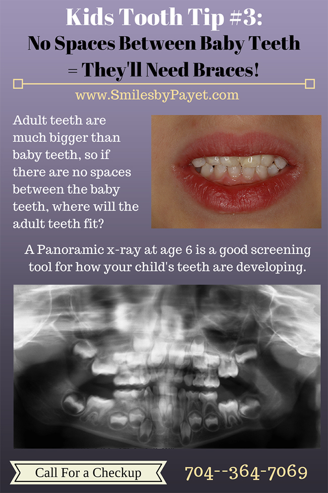Kids Tooth Tips from Charlotte dentist Dr. Payet; space between baby teeth is good