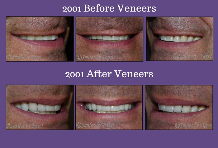 Before and After Veneers by Charlotte cosmetic dentist Dr. Payet