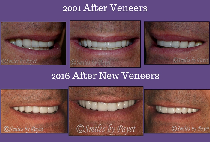 New Veneers after 15 years by Charlotte cosmetic dentist Dr. Payet