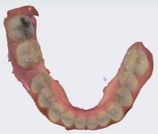 TRIOS-scan-lower-teeth