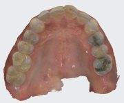 TRIOS-scan-upper-teeth