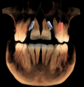 3D xray example showing dental implants by Charlotte dentist Dr. Payet