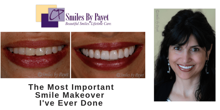 Cosmetic dentistry with porcelain veneers by Charlotte dentist Dr. Payet