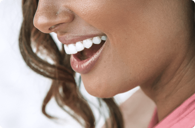 sorriso de uma mulher com alinhador transparente