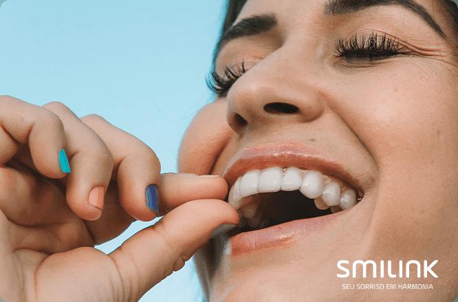 lentes de contato dental ou dentes naturais? Mulher encaixando o alinhador transparente sob os dentes
