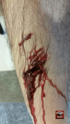 leg bite with logo b