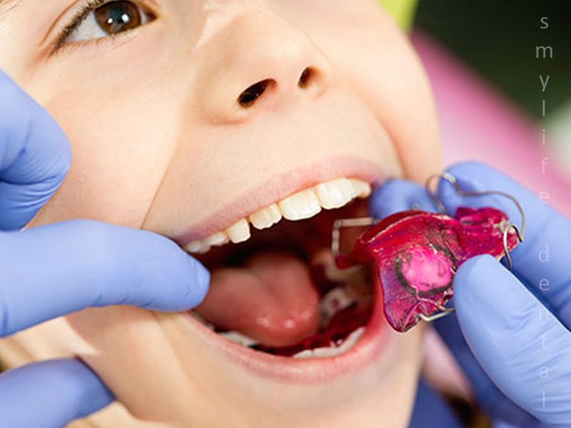 Best Orthodontist In Bangalore for evaluation of Children teeth