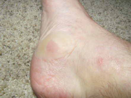 Foot Blister band-aid