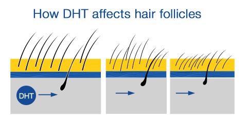 How DHT affects hair follicles