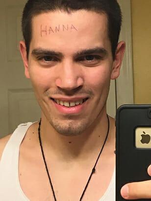 hanna-poisonivylul-poison-ivy-forehead-victim-2