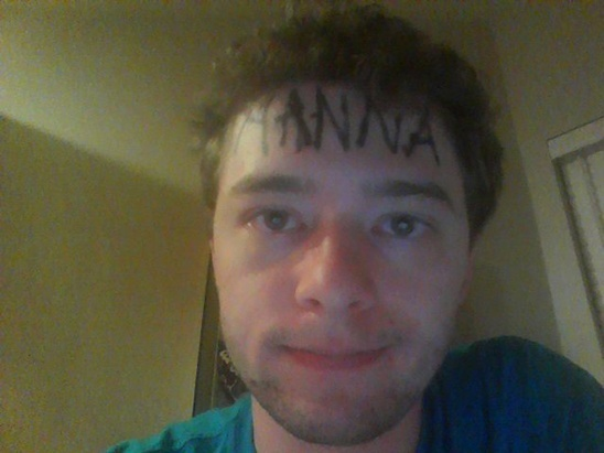 hanna-poisonivylul-poison-ivy-forehead-victim-4