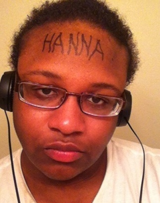 hanna-poisonivylul-poison-ivy-forehead-victim-8