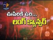 Lung Cancer Overview | Sukhibhava | 10th November 2019 | Full Episode | ETV Andhra Pradesh  (Video)