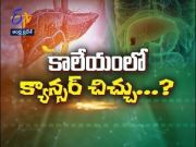 About Liver Cancer   Health Tip   Sukhibhava   11th June 2021   ETV Andhra Pradesh  (Video)