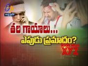 About brain Injury | Sukhibhava | 14th September 2021 | ETV Andhra Pradesh  (Video)