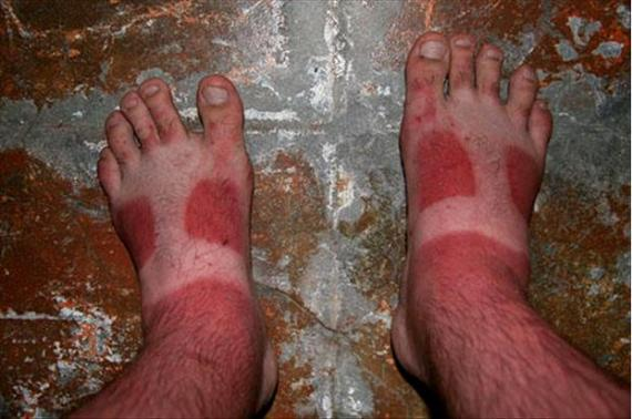 10 Unbelievable Sunburns that Hurt Just to Look at
