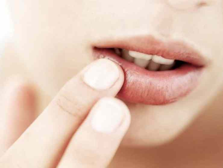 If you're looking for some ways to get rid of a cold sore, then these are some tested remedies that have been proven to work!