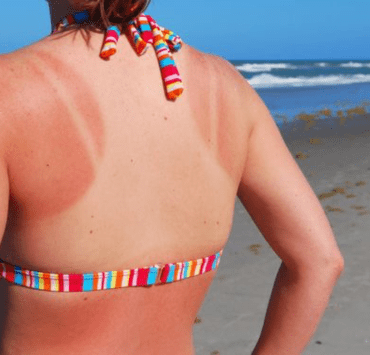 Natural Remedies For A Sunburn You Should Know Before The Summer Hits