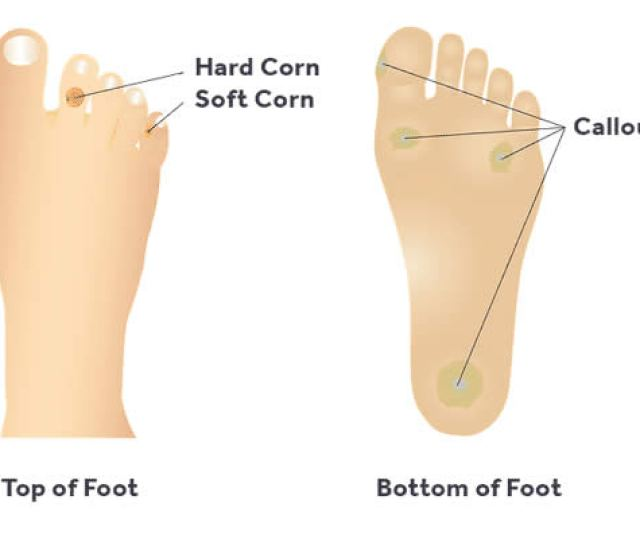 What Causes Foot Calluses And Corns Tips For Prevention And Treatment