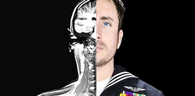 The US Military Is Developing Brain Implants to Boost Memory and Heal PTSD – Defense One