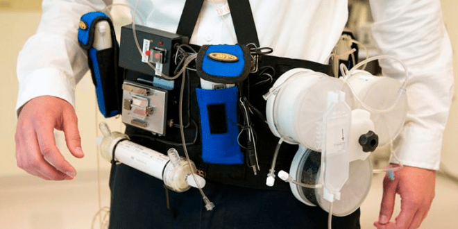Wearable artificial kidney prototype successfully tested | KurzweilAI