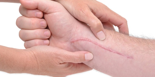 Stopping scars before they form | ScienceDaily