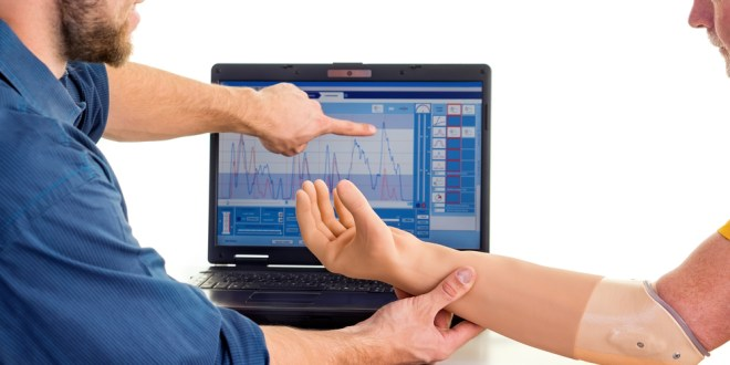 Prosthetic arm technology detects spinal nerve signals | ScienceDaily