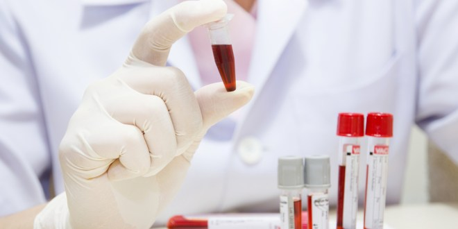 Computer program developed to diagnose and locate cancer from a blood sample | ScienceDaily