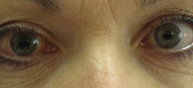 Glaucoma may be an autoimmune disease | Science Daily