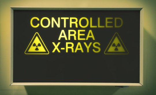 New way to protect against high-dose radiation damage discovered | Science Daily