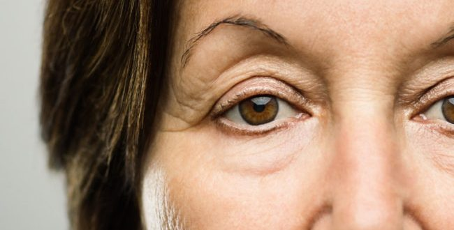 The Best Options for Droopy Eyelids, Circles and Sags | Cleveland Clinic